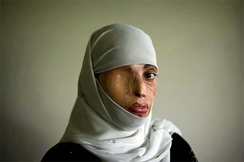 ©Emilio Morenatti. Violencia de género, Pakistán. Primer premio Fotopres´09